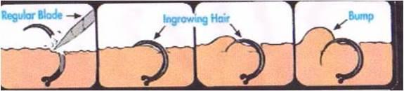 Lông mọc ngược và cách điều trị hiệu quả1