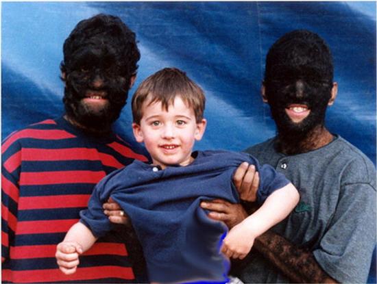 Anh em nhà Ramos Gomez là những người nhiều lông nhất thế giới