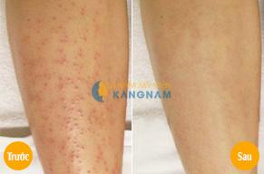Trị viêm nang lông có giúp thu nhỏ lỗ chân lông không?4
