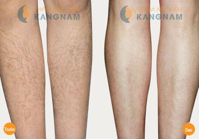 Làm thế nào để hết lông chân vĩnh viễn?8
