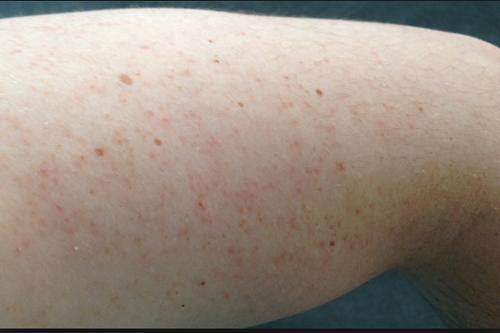 Những tác hại về da của các phương pháp tẩy lông không an toàn