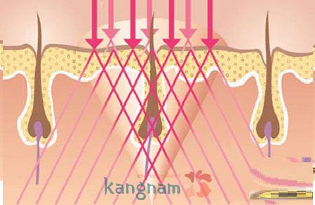 Từng sợi lông sẽ bị tiêu diệt hoàn toàn bởi năng lượng New Elight