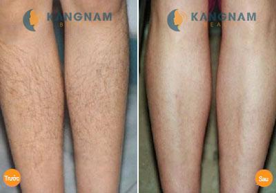 Da chân bị viêm nang lông có triệt lông chân được không?