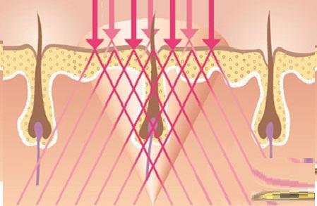 Triệt lông mặt bằng New Elight có hại gì không?2