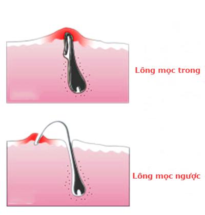 Xử lý lông mọc ngược ở nách đơn giản ngay tại nhà