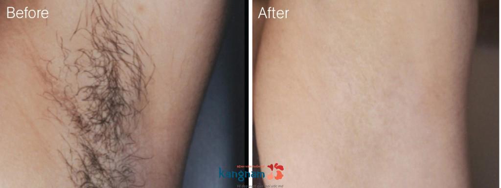 Kết quả thực tế sau 5 lần điều trị triệt lông tại Kangnam