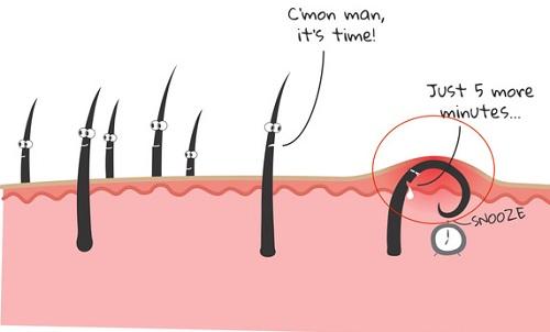 triệu chứng của viêm lỗ chân lông76