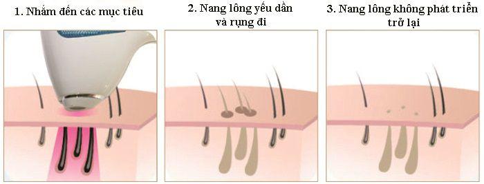 Tia laser tác động đến từng nang lông phát huy hiệu quả cực kỳ cao