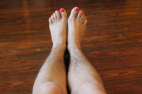 Bác sĩ ơi, làm sao để hết lông chân vĩnh viễn ạ?1