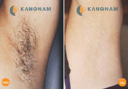 Kết quả triệt lông nách của khách hàng tại TMV Kangnam