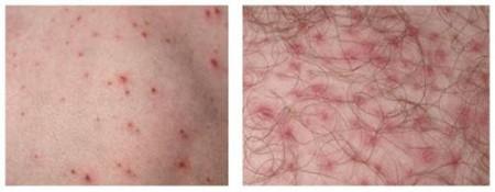 điều trị viêm nang lông