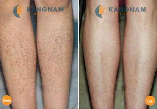 Kết quả triệt lông của khách hàng tại TMV Kangnam