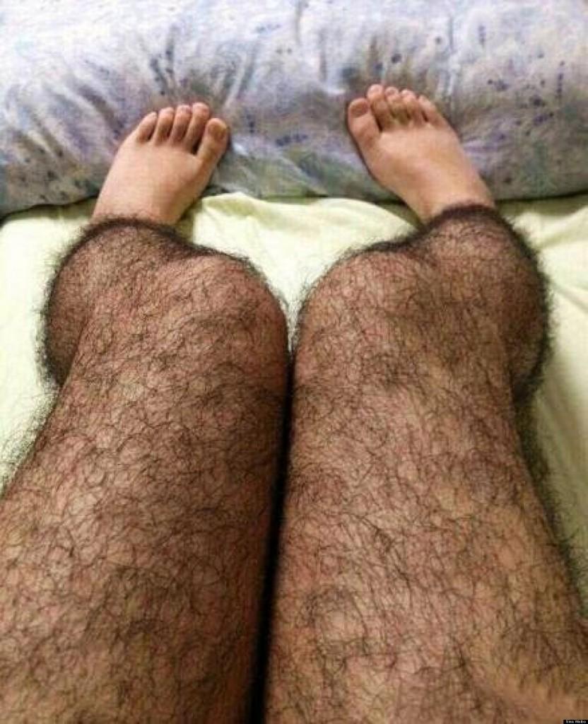 Cách tẩy lông vĩnh viễn tại nhà khiến lông mọc nhiều hơn chỉ sau 3-5 ngày