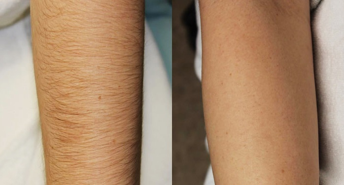 Tại sao triệt lông bằng New E-light được nhiều người lựa chọn?79
