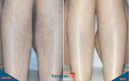 quy trình triệt lông an toàn