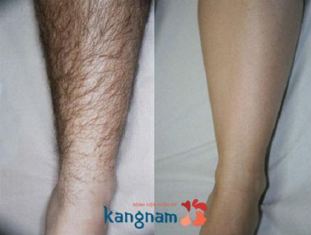 tay-long-bang-cong-nghe-new-elight-duoc-thuc-hien-nhu-the-nao01f