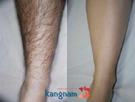 Một số hình ảnh chứng minh rằng có phương pháp triệt lông vĩnh viễn