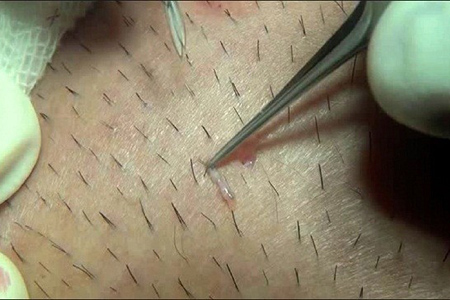 Triệt lông vĩnh viễn hiệu quả theo lời khuyên của chuyên gia2
