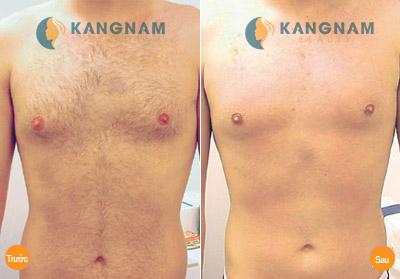 Kết quả tẩy lông ngực bằng công nghệ New E-light của khách hàng Kangnam