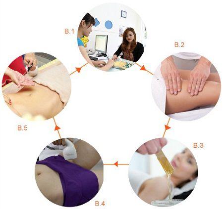 Quy trình tẩy lông vùng kín đạt chuẩn an toàn của Bộ Y tế