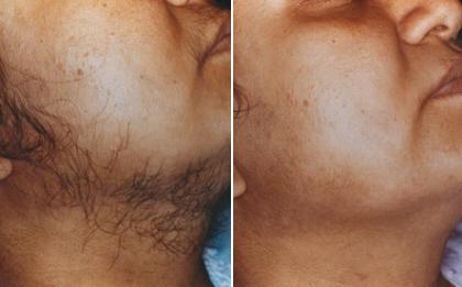 tẩy râu vĩnh viễn cho nam giới