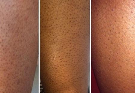 trị viêm nang lông tận gốc 1