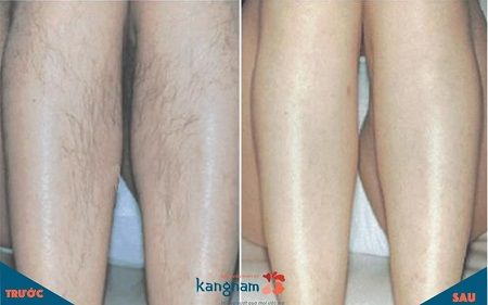 triệt lông chân vĩnh viễn 5