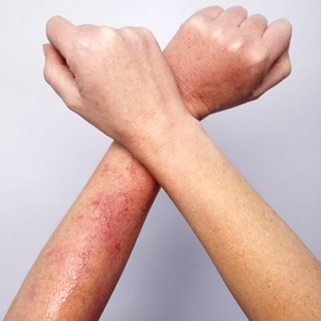 Những tiêu chí nhận biết phương pháp triệt lông hiệu quả