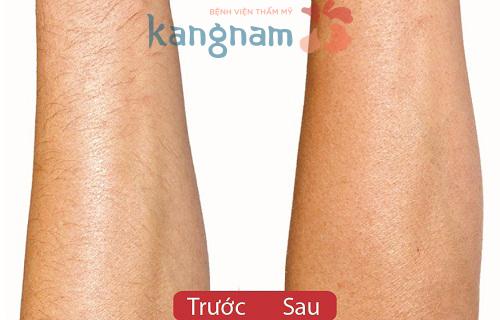 Làm thế nào để tẩy lông chân nhanh chóng và an toàn?43