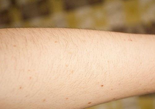 Triệt lông tay vĩnh viễn có nguy hiểm không?1